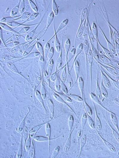 A balatoni süllő kopoltyúján élősködő Henneguya creplini myxospórái mikroszkópos felvételen